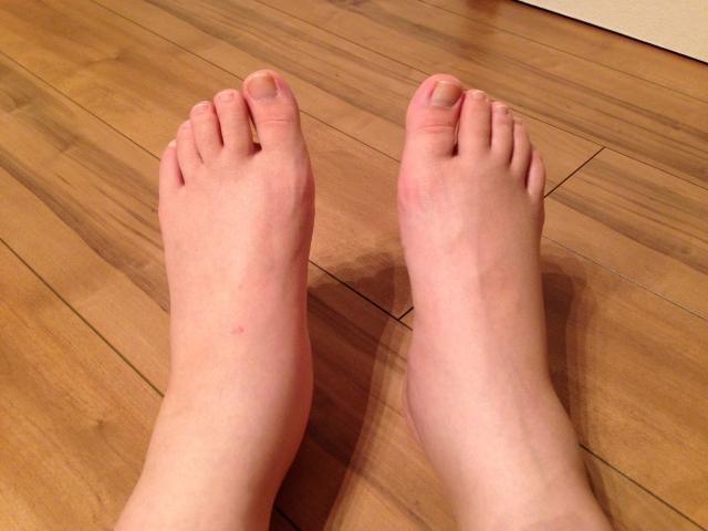 女性は足がむくみやすい!その原因は筋肉不足にあった?